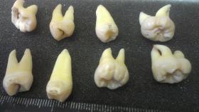 Удаленные зубы у одного пациента
