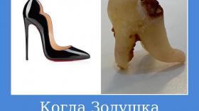 Когда Золушка потеряла зуб, а не туфельку