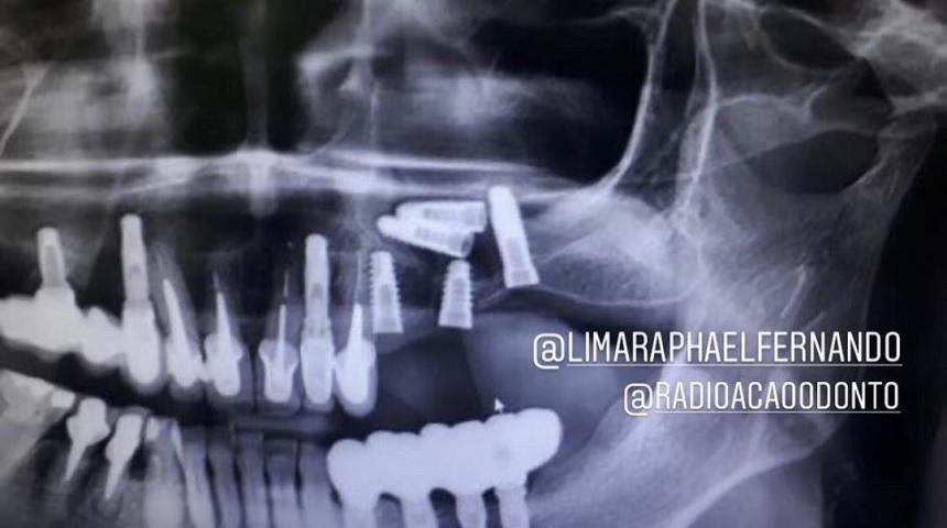 Имплантологическая заначка