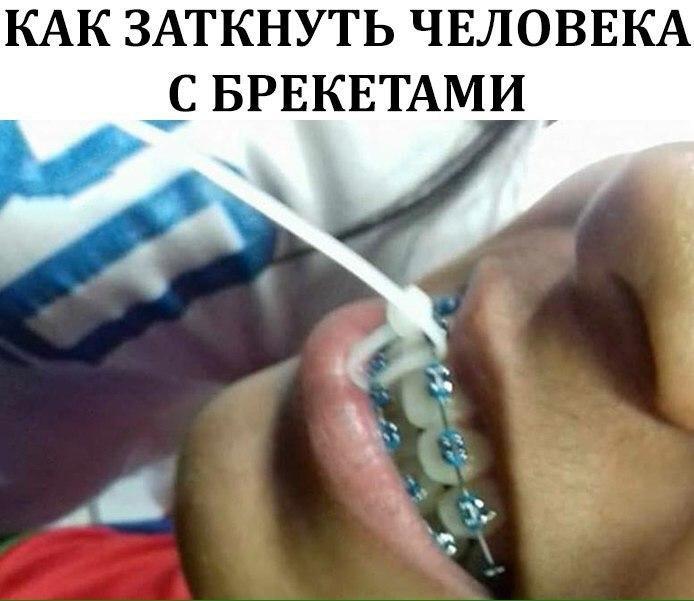 Как заткнуть человека с брекетами