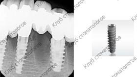 ADIN Dental Implants Touareg S