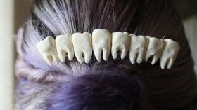 Заколка стоматолога 2