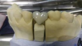 Зубная любовь 12