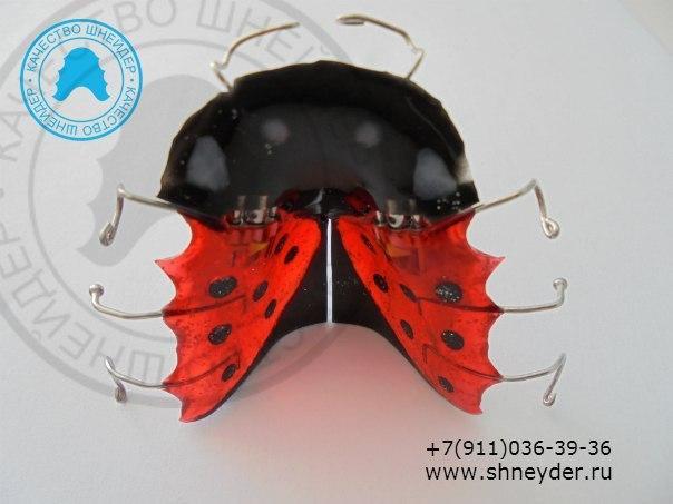 Ортодонтическая пластинка с винтами для дистализации боковых отделов