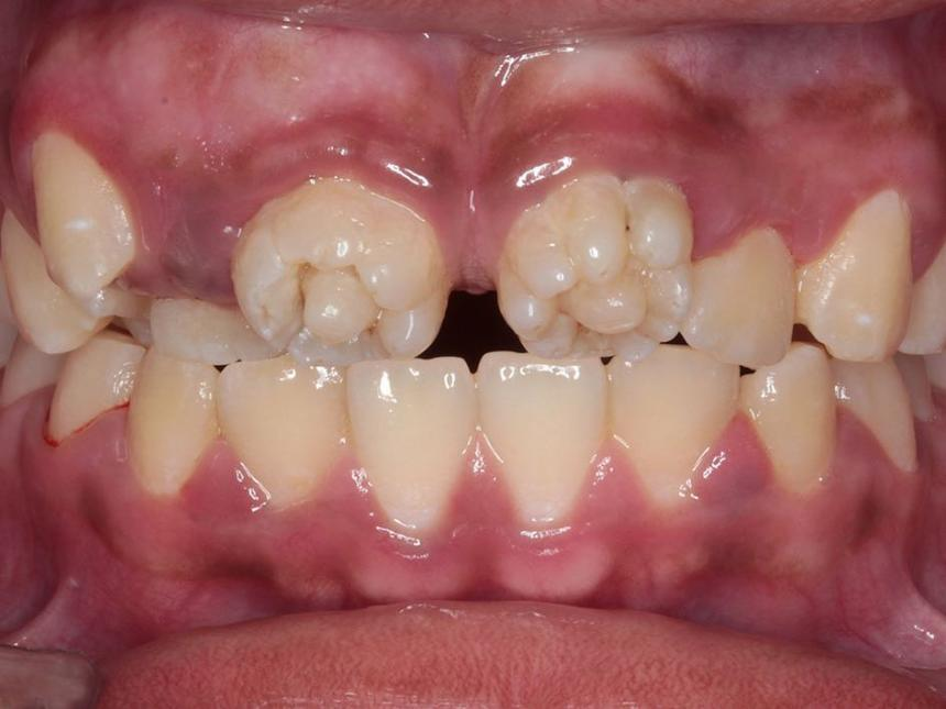 Цветочные зубы (зубы Гетчинсона)