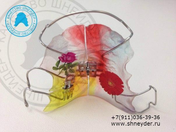 Ортодонтическая пластинка с двумя винтами