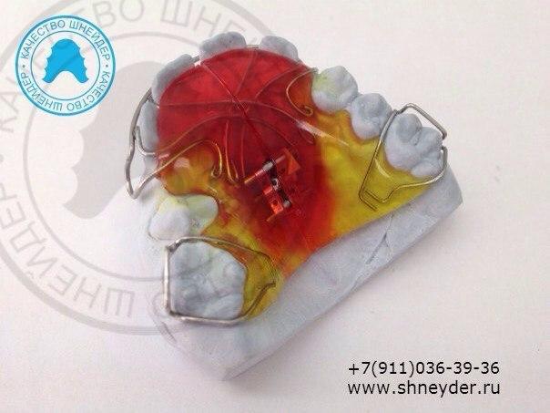 Ортодонтическая пластинка с расширяющим винтом