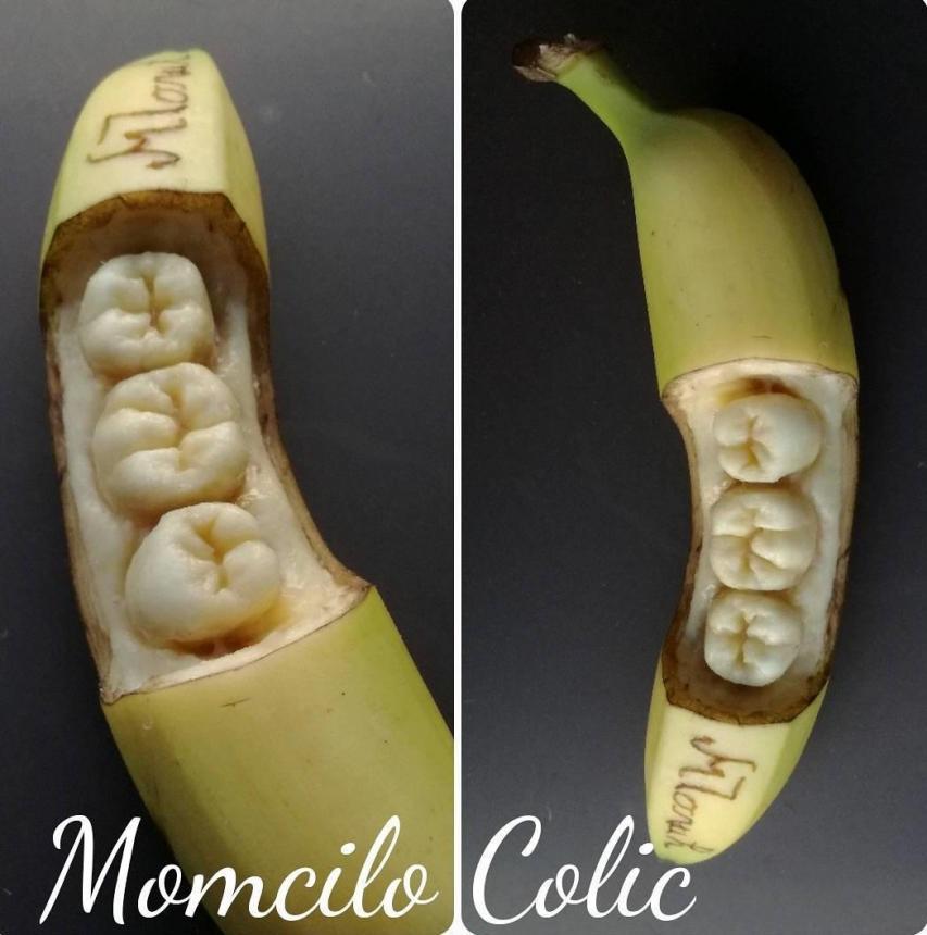 Банановые зубы 3
