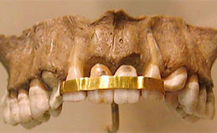 Зубной мост в Древнем Египте