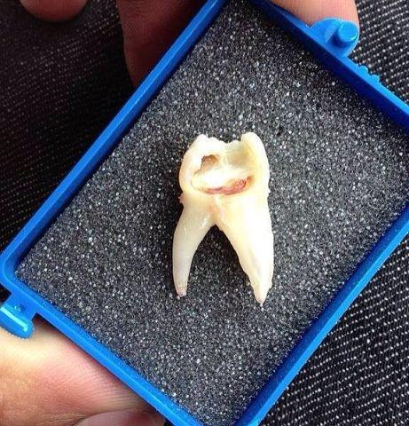 Улыбчивый зуб