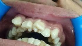 Photoshop или аномалия зубов?