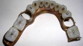 Частично съемный зубной протез 1860г., построенный из металла и вулканита