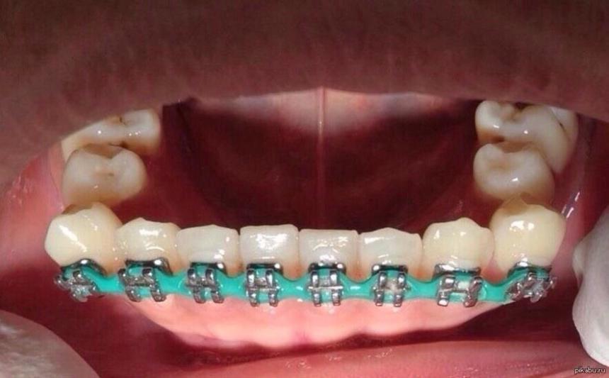 Зубки в рядок