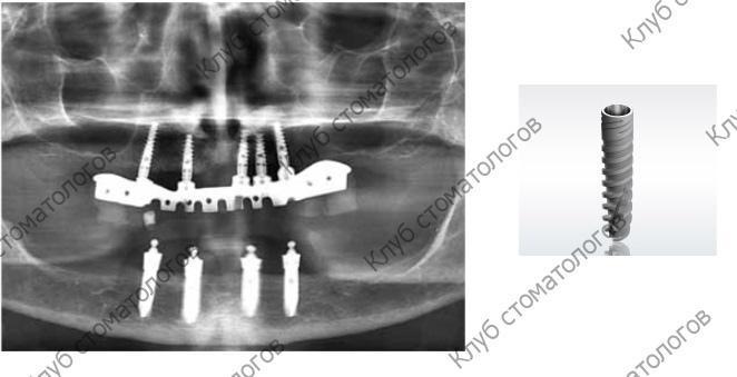 ADIN Dental Implants Touareg NP