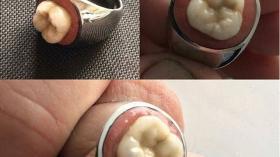 Кольцо для стоматолога 19