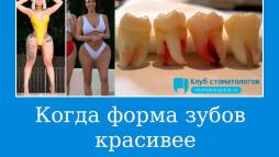 Когда форма зубов красивее женского тела