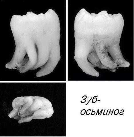 Зуб-осьминог