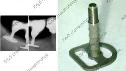 G.Scortecci Basal implant