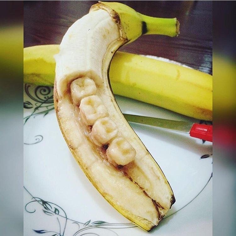Банановые зубы 2