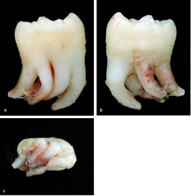 Сколько корней у зуба?