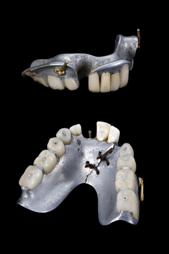 Частично съемный зубной протез на верхнюю и нижнюю челюсть (1858-1880гг.)