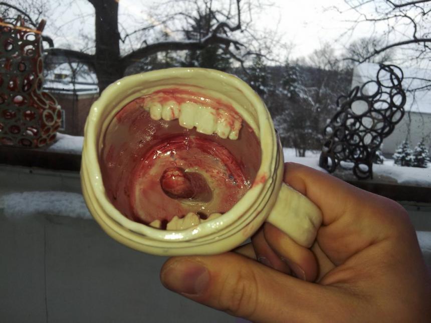 Чашка стоматолога 5