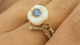 Кольцо для стоматолога 30
