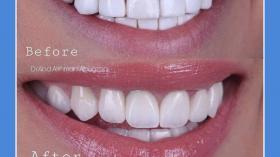 Когда зубы оживают