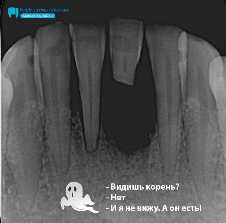 Невидимый корешок зуба
