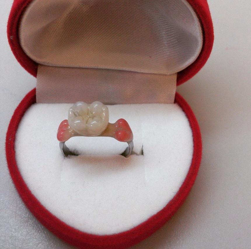 Кольцо для стоматолога 2