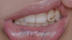 Украшение на зубе и тату на сзилистой