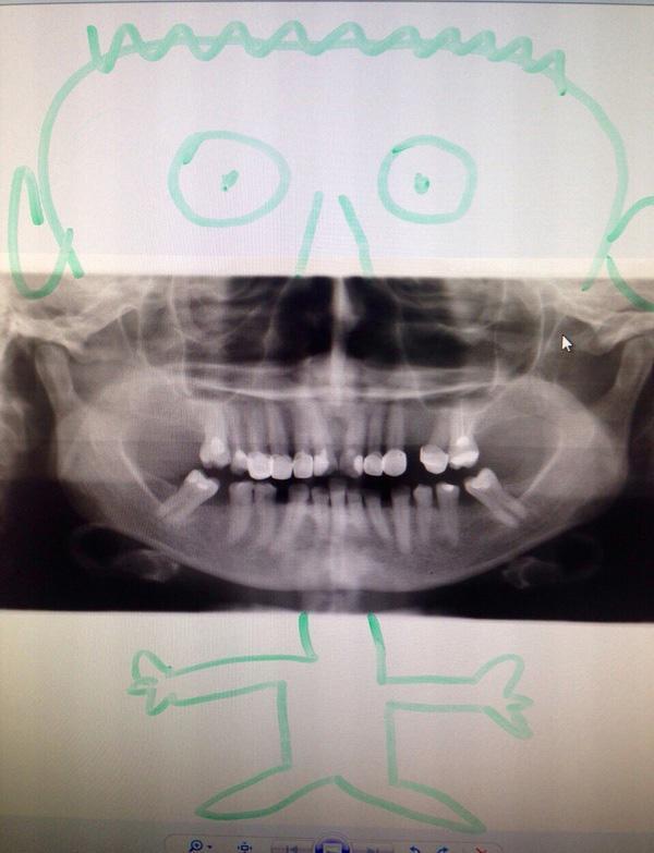 Пациент не мог понять где какой зуб