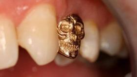Зубная коронка - череп