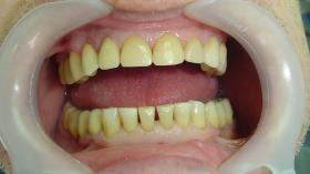 Реставрация фронтальных зубов (после)