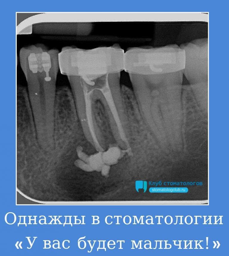 Однажды в стоматологии - У вас будет мальчик!