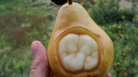 Грушевый зуб 2