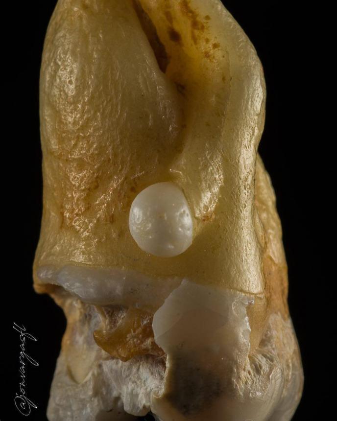 Эмалевая жемчужина 2