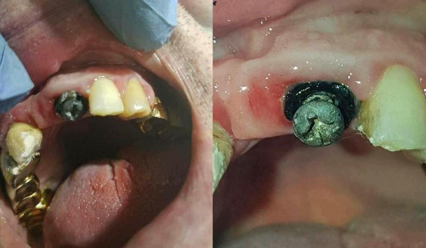Зубной саморез