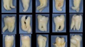 Подборка зубов