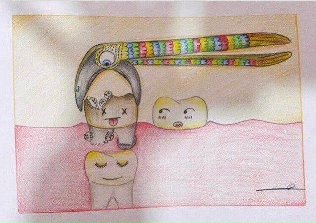 Сказка про удаление зуба