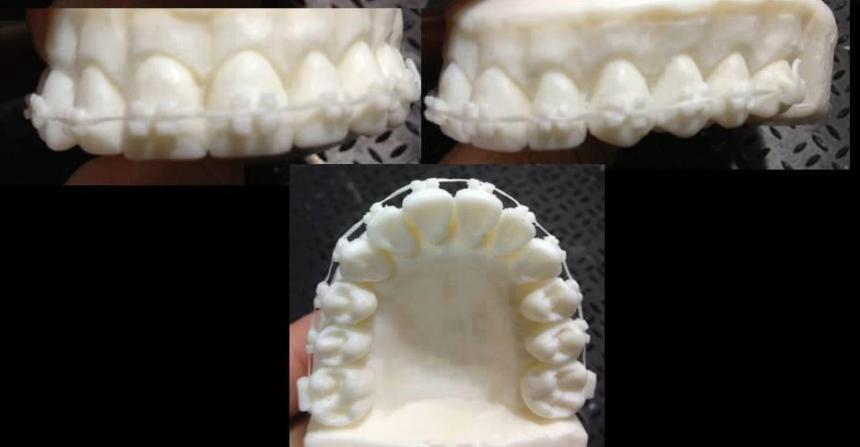 Мыльные зубы 7
