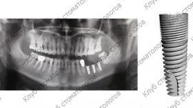 Green Implant System Tec Классик