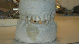 Слепок челюстей