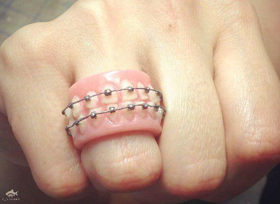 Кольцо ортодонта
