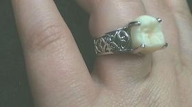 Кольцо для стоматолога 27