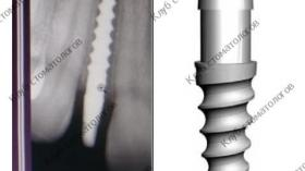 Green Implant System Tec Вектор