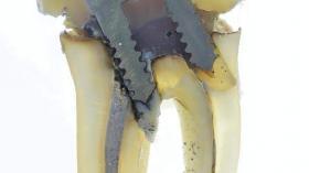 Срез пролеченного зуба