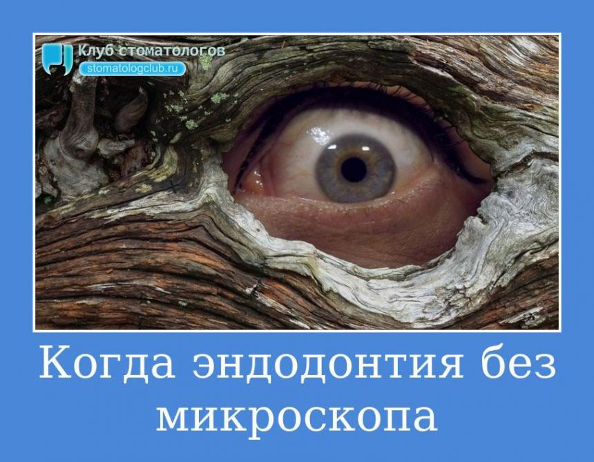 Когда эндодонтия без микроскопа