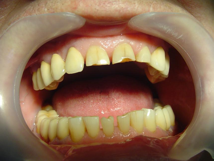 Реставрация фронтальных зубов (до)