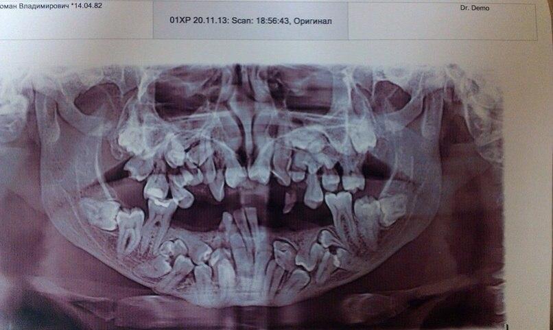 Путаница в зубах
